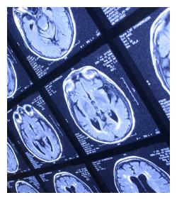 I-prac-braininjury