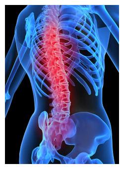 I-prac-spinalcordinjury